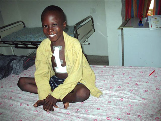 Compassion International sponsored child Achile after heart surgery