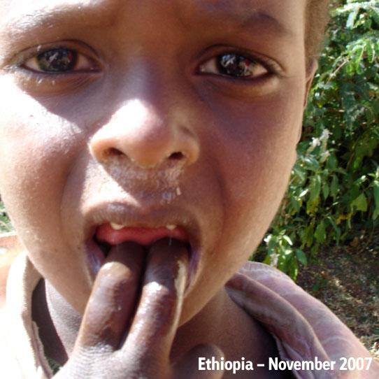 Ethiopia-2007