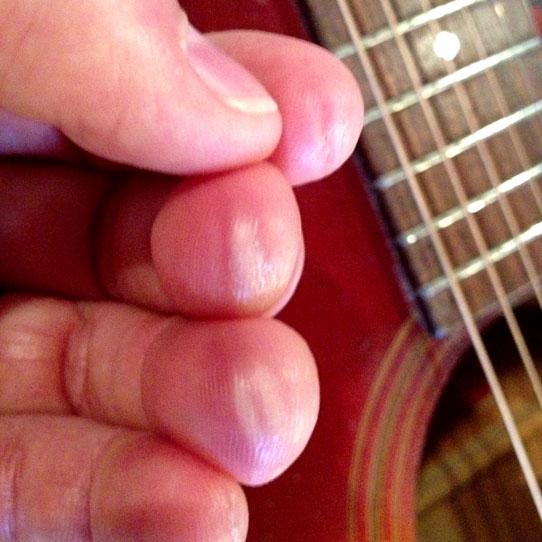 Finger-callouses