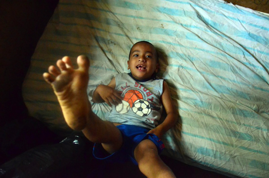Marvin's-leg